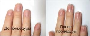 Запечатывание ногтей LCN